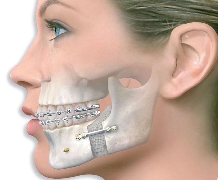 Ağız, Diş, Çene Cerrahisi